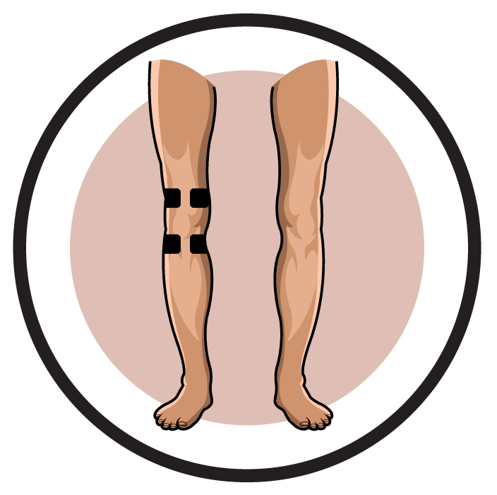 tens lower back placement guide